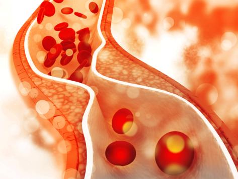 Pad-artery-plaque