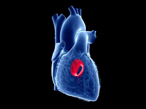 Cardio heart mitral valve