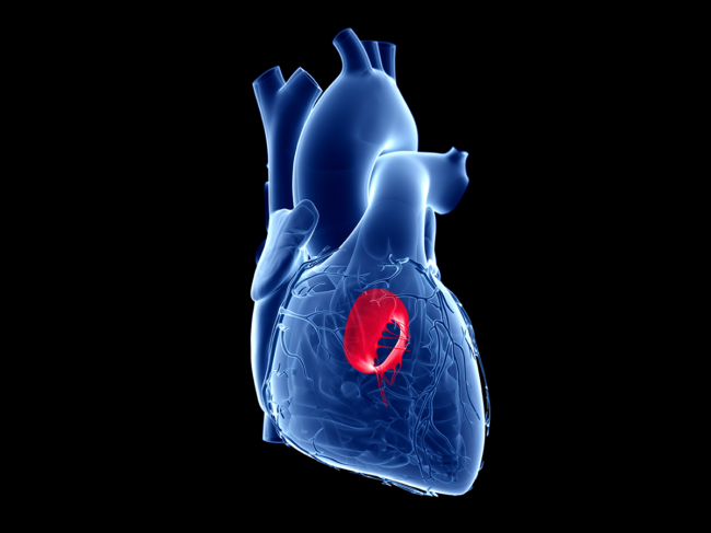 3D rendering of heart, mitral valve