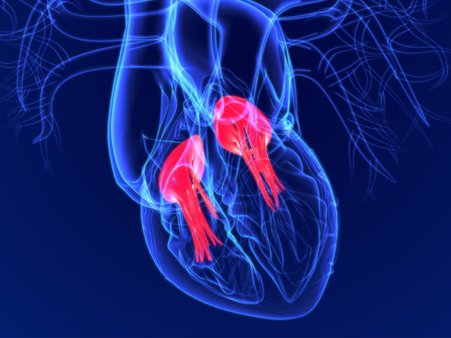 3D heart illustration showing tricuspid and bicuspid valves