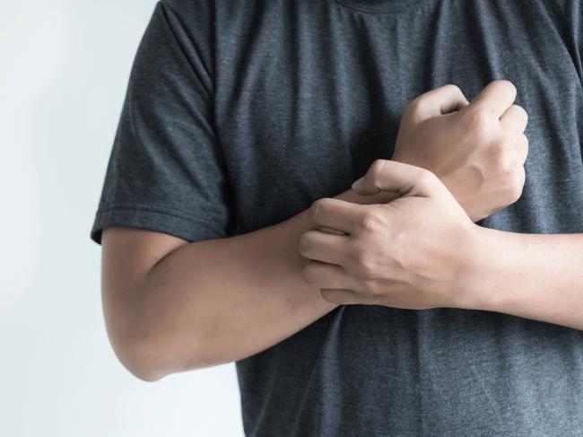 Dematologic-arms-itch