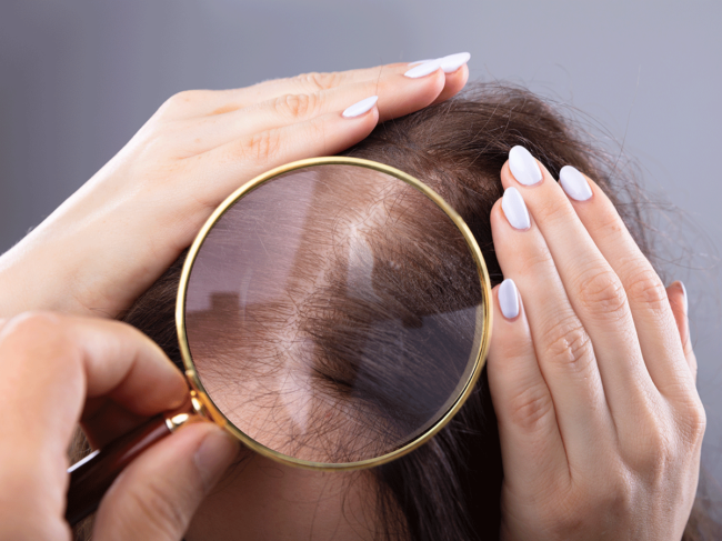 Hair and scalp under magnifying glass