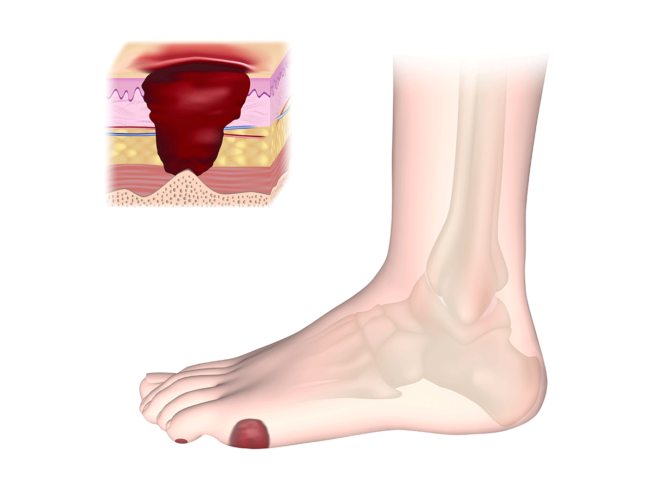 Illustration of diabetic foot ulcer, cross section of wound