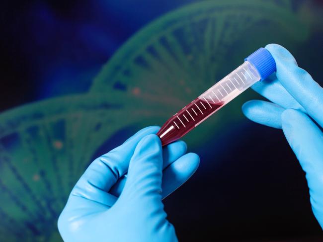 Blood sample, DNA