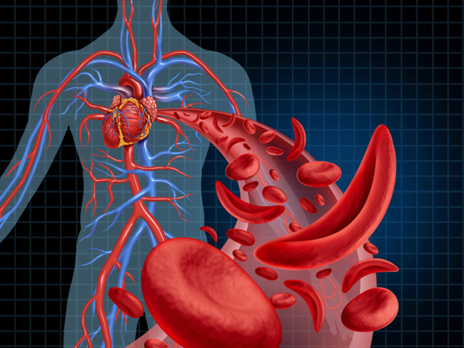 Sickle cell illustration