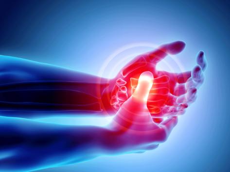 Arthritis pain illustration