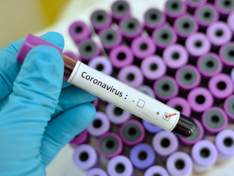 Coronavirus-test-tube