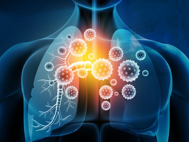 Coronavirus, lungs
