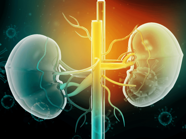 Kidney disease illustration