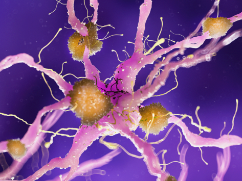 Amyloid plaque on nerve cell