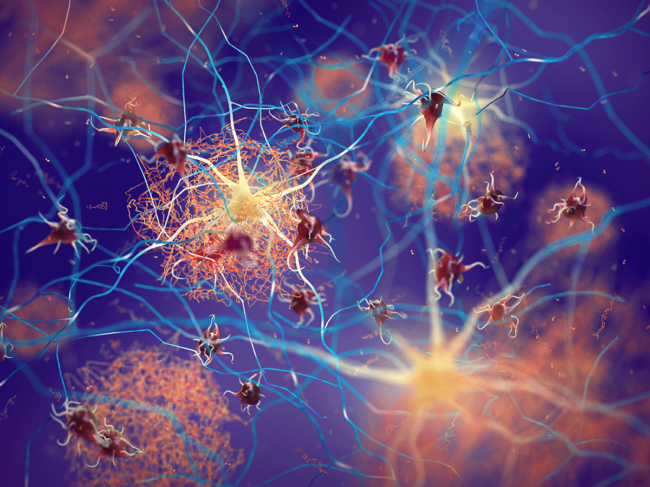 Amyloid plaques forming between neurons