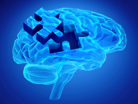 Brain with puzzle piece removed