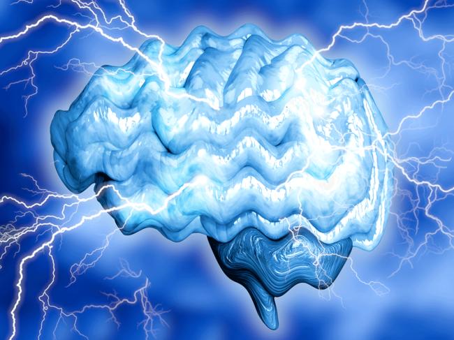 CNS brain epilepsy