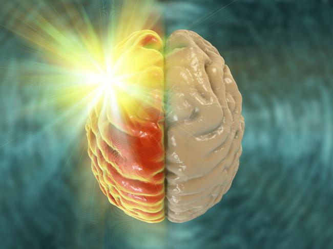 Migraine-brain-light-aura