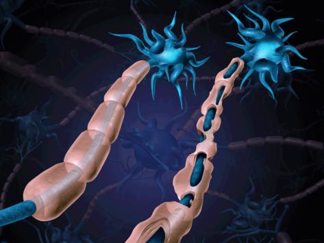 Multiple sclerosis damaged myelin