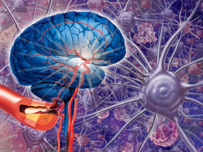 Stroke illustration: brain, artery, neurons