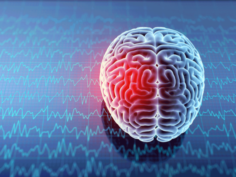 Neurology brain injury