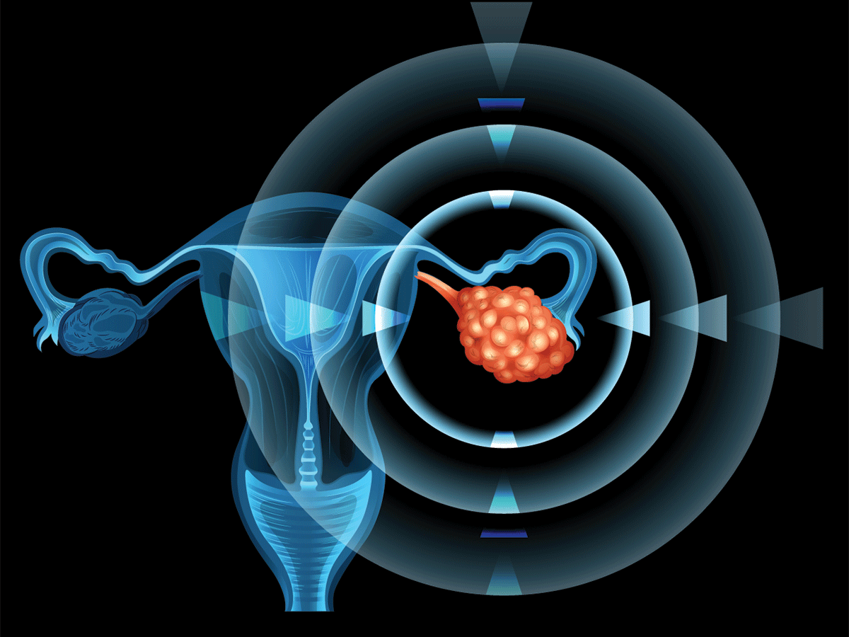 Ovarian Fever Pumps Vbl Shares Positive Peek At Phase Iii Cancer Gene Therapy 2020 03 26 Bioworld